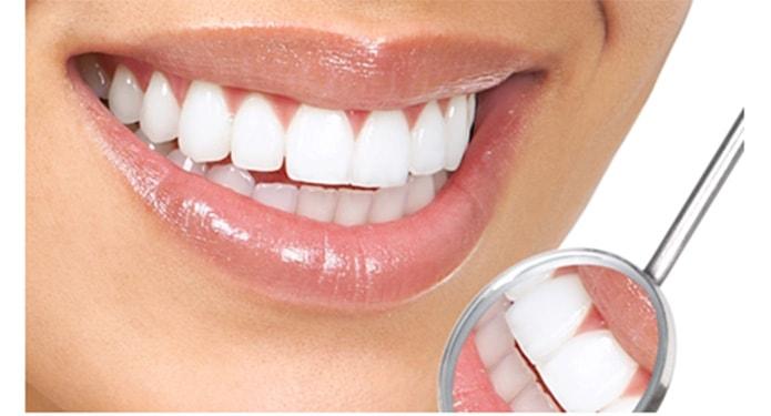 методы отбеливание зубов отзывы