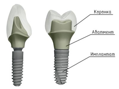 Абатмент для имплантата