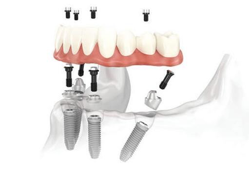 Что такое абатмент для имплантации зубов?