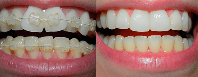 Как меняется улыбка после брекетов