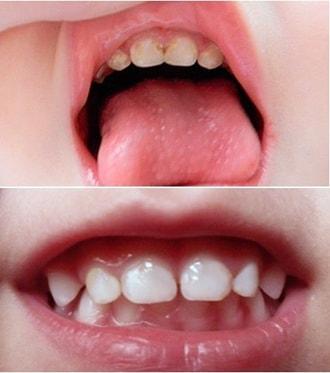 Сыпь на теле у ребенка от 2 лет фото с пояснениями и