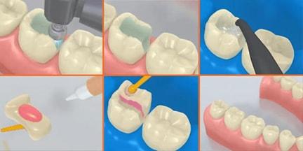 установка вкладки в зуб будет, учетом растаможки