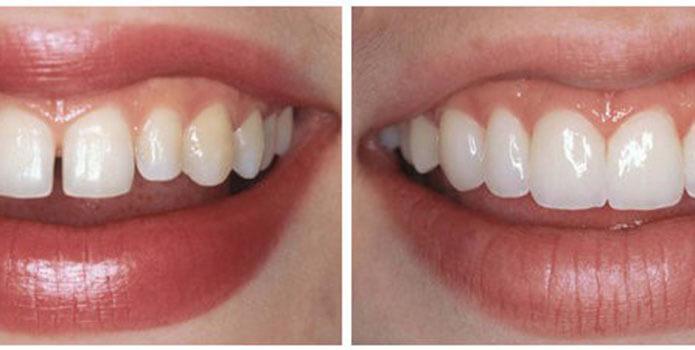 можно ли отбеливать зубы с винирами