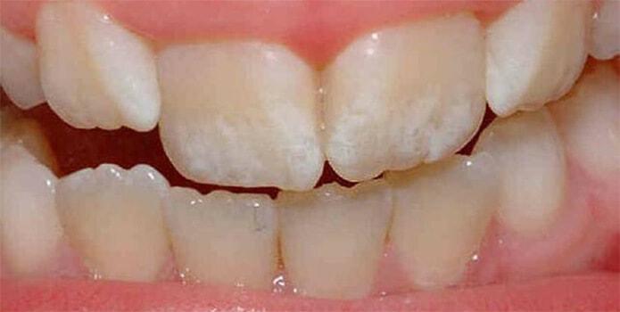 Эрозия зубной эмали фото