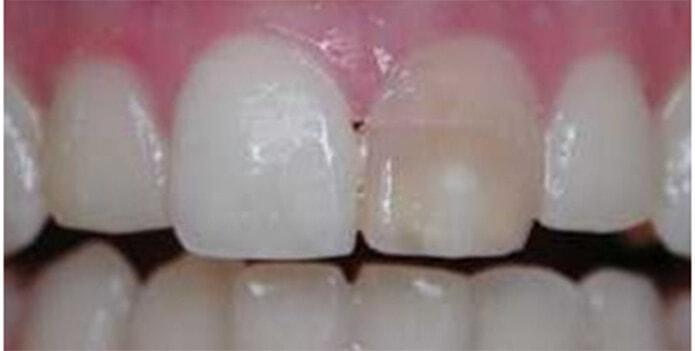 отбеливание зубов оксид титана
