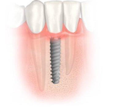 качественные зубные импланты нобел