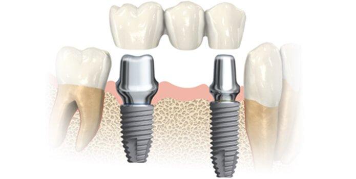 импланты для зубов nobel