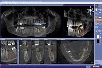 Снимок зубной челюсти при диагностике, фото 2