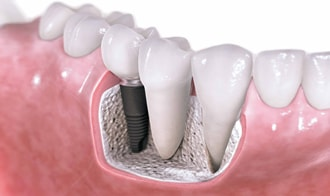 Расположение имплантата в челюсти человека, фото