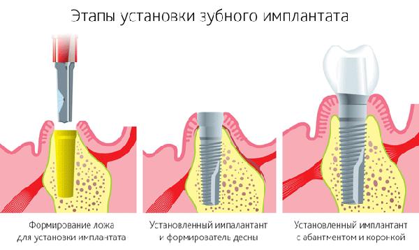 Этапы имплантации зубов от стоматологии Евродент - фото