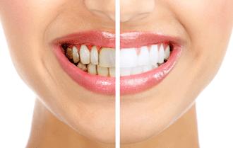 Лечение зубов в клинике Евродент, фото 6